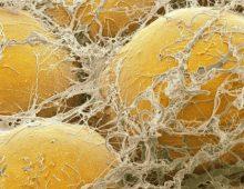 IL-37 vermindert overgewicht–geïnduceerde ontsteking en insulineresistentie